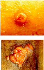Describe this skin infection, clinical manifestations, the causative organism, and diagnosis.