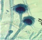 Describe what fungi this is. Describe clinical manifestations and diagnosis.