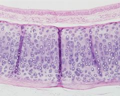This is an example of _________ cartilage.