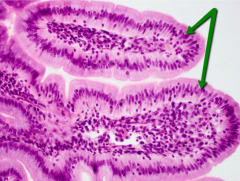 This is an example of _________________ epithelia.