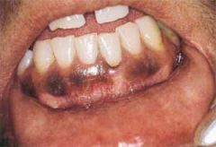 usually found in the gingiva, but can occur throughout the mouth