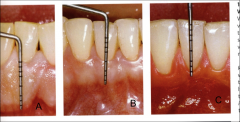 1 - 9 mm. Avg: 3.5 - 4.5 in max and 3.3 - 3.9 mm in mand. A has lots of attached gingiva while C has very minimal attached gingiva (make sure your pt is aware they don't have much attached tissue.)