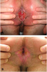 Name this skin condition, the causative organism, epidemiology, pathophysiology and diagnosis.