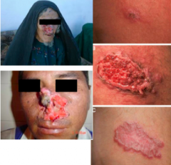 Name this skin condition, the causative organism, epidemiology, and diagnosis.