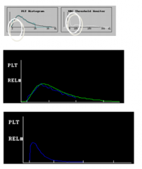 Top & middle: giant plts can show up in WBC histogram Bottom: small plts (shifted curve)