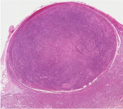 What kind of neoplasm and its abnormalities?