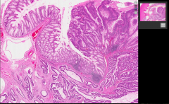 What kind of neoplasm is it and its abnormalities?