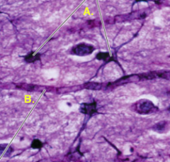 What tissue is this ? Elaborate on its function and name the labels A & B. Give an example of where can it be found.