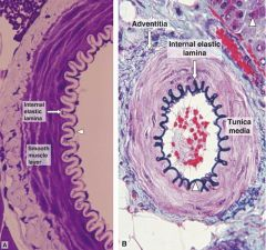 The INTERNAL ELASTIC LAMINA (or internal elastic lamella) : 