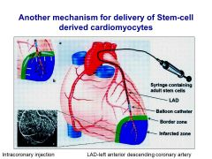 Methods of cell delivery for cardiac implantation. A, intravenous administration; B, intracoronary infusion using a balloon catheter after restoration of arterial patency; C, transepicardial injection via thoracotomy into the border zone of the infarct; D