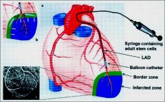 The stem cells prevent the infarct from growing any farther