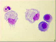 What cell is this, Mesothelial or Malignant?inpleural fluid