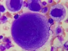 What cell is this, Mesothelial or Malignant? inpleural fluid