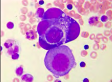 is this cannibalismin Mesothelial or Malignant?
