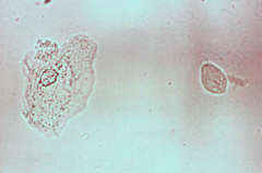 Identify the cell on the right from a vaginal fluid seen in a case of vaginal inflammation.
