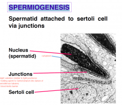  Nuclear volume shrinks to 1/40th  lysosomal enzymes produced by golgi and accumulate in a membrane-bound vesicle = Acrosome (accumulate in the head of nucleus)  Centriole initiates assembly of tail 9 + 2 microtubule doublets = Axonem...