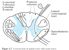 central cord syndrome because the cervical tracts are laminated nearer to the tracts- thus the upper tracts are more affected