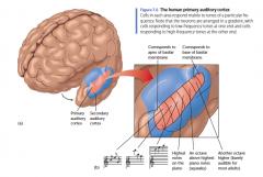 Hun belangrijkste tekort is in de mogelijkheid om combinaties of sequenties van geluiden, zoals muziek of spraak te herkennen. Klaarblijkelijk is de cortex is niet noodzakelijk voor alle soorten horen, alleen voor geavanceerde verwerking ervan.     Toe