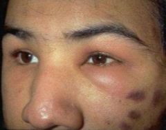 -Swelling around eye -Always abnormal -Causes include: allergic rxns, thyroid disease, mono, conjunctivitis, renal disease, insect bites, trauma, cellulitis