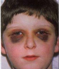 -AKA raccoon eyes -Periorbital edema -Indicates basilar skull fracture from trauma -If no trauma has occurred, suspect bleeding disorder
