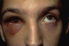 -Direct blow to eye -Impaired ocular movement due to inferior rectus entrapment -Periorbital edema, diplopia, epistaxis