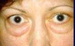-Represents a bilateral protrusion of eyeballs -Think hyperthyroid