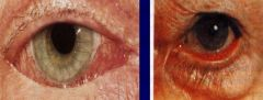 -Present when lower lid is turned away from eye -May result in excessive tearing -Causes: congenital, scarring, surgery, trauma, aging, Bell's palsy