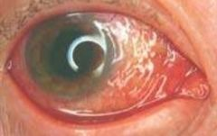 -Non painful eye irritation that does NOT affect vision or pupils -Allergic (bilateral): pruritic, cobblestone appearance w/ clear d/c as well as chemosis or edema of conjunctiva -Viral (bilateral): usually adenovirus w/ enlarged preauricular node and c