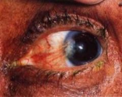 -Benign fleshy, triangular encroachment of bulbar conjunctiva OVER cornea at 3 or 9 o'clock -Usually bilateral and caused by excessive wind, sun and dust exposure -Irritation, redness, tearing -Tx w/ eye lubricants, steriods, possibly surgery