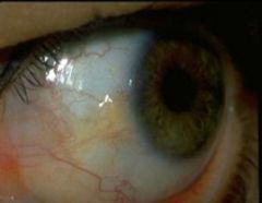 -Benign raised yellow/white lipid deposit on bulbar conjunctiva extending TO cornea at 3 and 9 o'clock -Thought to be due to sun, dirt and dryness over long period of time -No tx required