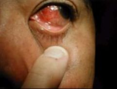 -Markedly dilated vessels that do not extend onto underside of lower lid -May appear purplish w/ deep pain and photophobia that can threaten vision -Often in women w/ associated connective tissue disease