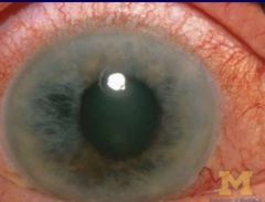 -Indicated inflammation of iris and ciliary body -Produces pink band surrounding corneal limbus -NOT seen in conjunctivitis -Commonly seen in acute glaucoma, iritis