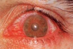 -Mod, aching deep pain from iris spasms -Dec vision and photophobia -Small, irregular pupil -Cornea clear or slightly clouded -Injection confined to corneal limbus -Sarcoidosis, RA, Reiters, ankylosing spondyltis