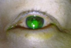 -May be secondary to infection, contacts, UV light, drugs, or blepharitis -PAIN, photophobia, FB sensation, lacrimation, injection, possible dec vision -Dx w/ fluorescein staining -Tx / antibiotics (controversial), artificial tears