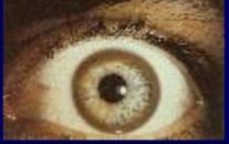 -Circular band of brown pigment near limbus -Associated w/ Wilson's disease, a disorder of copper metabolism