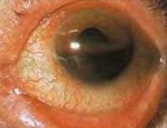 -Layer of BLOOD visible in anterior chamber -Caused by blunt trauma -Refer immediately