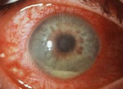 -PUS in anterior chamber -May accompany corneal ulcer -Refer immediately