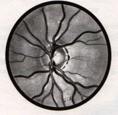 -Often seen around optic disc -Normal developmental variations that appear as either white sclera, black retinal pigment, or both, especially along temporal border of disc -Not part of disc itself and should not be included in estimate of disc diameter