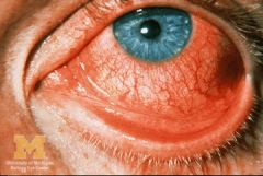 -Present: red, itchy eye w/ FBS x 1 week -Adenovirus is the most common cause        - Bilateral infection with copious watery d/c often with          marked FBS and a follicular conjunctivitis        -There may be pharyngitis, fever, malaise, and