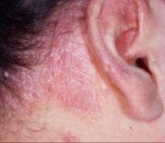 -Dry scales and underlying erythema behind ear -Caused by pityrosporum ovale -Tx w/ shampoos containing salicylic acid, coal tar, zinc, resorcin, ketoconazole, or selenium