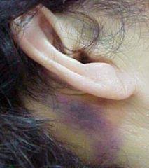 -Periauricular ecchymoses -Seen several days after basilar skull fracture