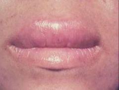 -Swelling of lips -Allergic rxn, meds, etc