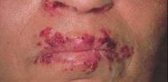 -Painful recurrent vesicular and ulcerative lesions of mouth and tongue -Caused by herpes virus, usually type 1  -Tx w/ acyclovir or valcyclovir