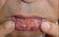 -Melanin spots on lip -Associated w/ multiple polyps of intestine -High risk for colon and small bowel cancer