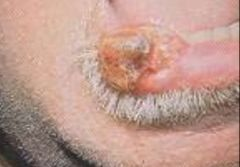 -Most common form of oral cancer -Thickened plaque, ulcer, or warty growth usually involving lower lip
