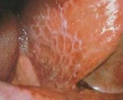 -White, reticulated or lacelike lesions -Can be painful, bilateral -Autoimmune -Tx w/ steroids