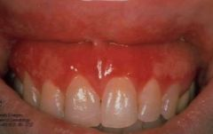 -Erythematous, bleeding, bulbous, edematous -Most common cause is plaque -Also phenytoin, OCs, calcium channel blockers