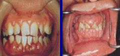 -Enlargement of gingiva -Can be due to leukemia, dilantin therapy