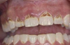 -Characterized by broken, discolored and rotting teeth -Drug causes salivary glands to dry out, which allows mouth's acids to eat away to tooth enamel -Vasoconstriction and tissue necrosis in moutn