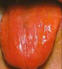 """-Tongue swelling. -Smooth appearance to the tongue due to pernicious anemia (Vitamin B12 Deficiency). -Tongue color changes (usually dark """"beefy"""" red). -Sore and tender tongue. -Difficulty with chewing, swallowing, or speaking"""